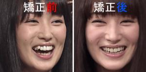 高梨臨の歯の矯正の前後を比べた写真を並べた画像